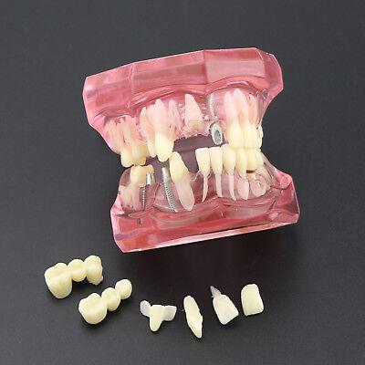 Dental Teeth Model Implant Study Analysis Demonstration With Restoration Pink
