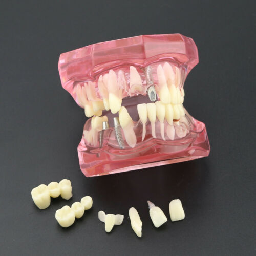 Dental Teeth Model Implant Study Analysis Demonstration With Restoration Pink
