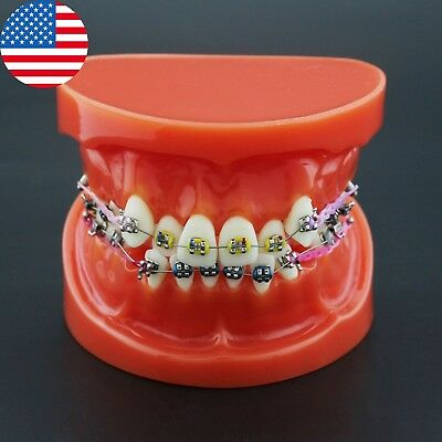 Usa Dental Orthodontic Typodont Teeth Model Bracket Arch Wire Ligature Tie 3005