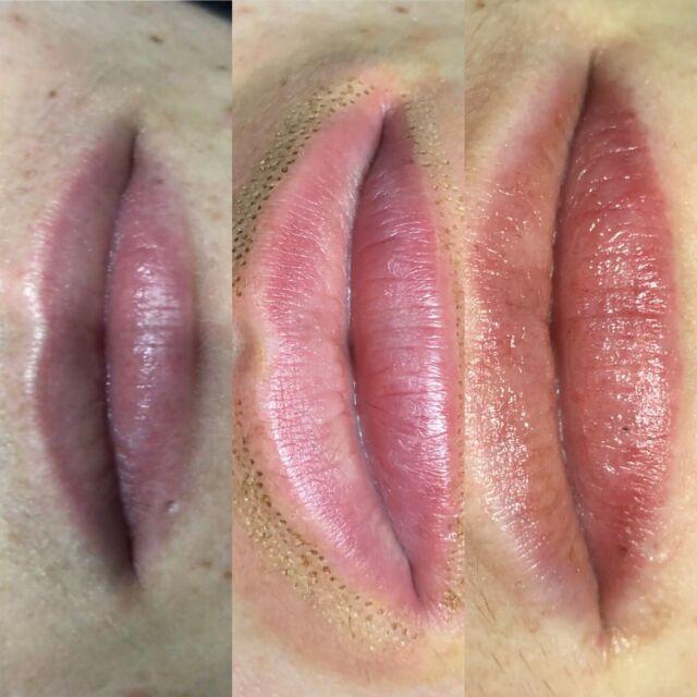Plasma Lift LIP FLIP $299 AFTERPAY & ZIPPAY | Beauty