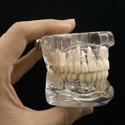Dental Teeth Study Model Classic Implant Typodont Model Restoration Removable