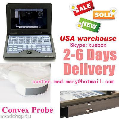 Promotion Digital Ultrasound Scanner Medical System For Humanconvex Probe.fda