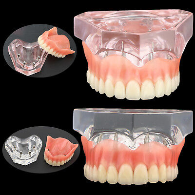 Dental Typodont Teeth Model Superior 4 Implants Overdenture Pink Clear