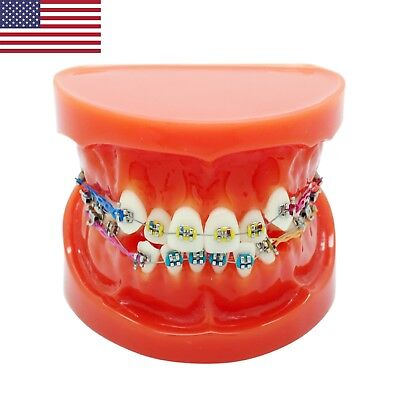 Usa Dental Teeth Orthodontic Model With Bracket Buccal Tube Archwire Chain 3005