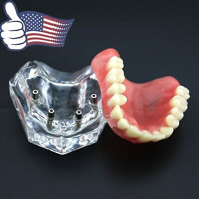 Us Dental Overdenture Implant Typodont Teeth Model Acrylic Upper Jaw Clear 6001