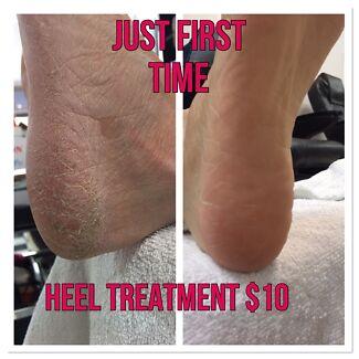 Heel treatment service