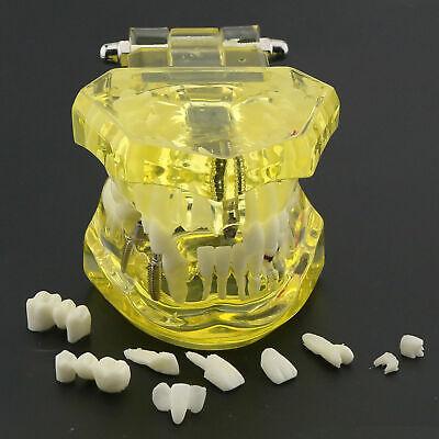 Dental Implant Model Typodont Restoration Disease Analysis Demo Study Teeth