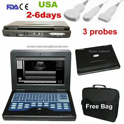 Contec Portable Ultrasound Scanner Convexlinearcardiac Laptop Machine 3 Probes