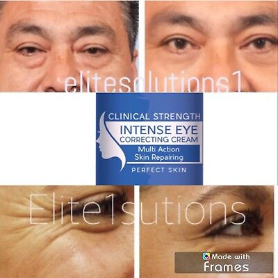 Under Eye Cream Remove Dark Circles Bags Face Lines Ageless Wrinkles