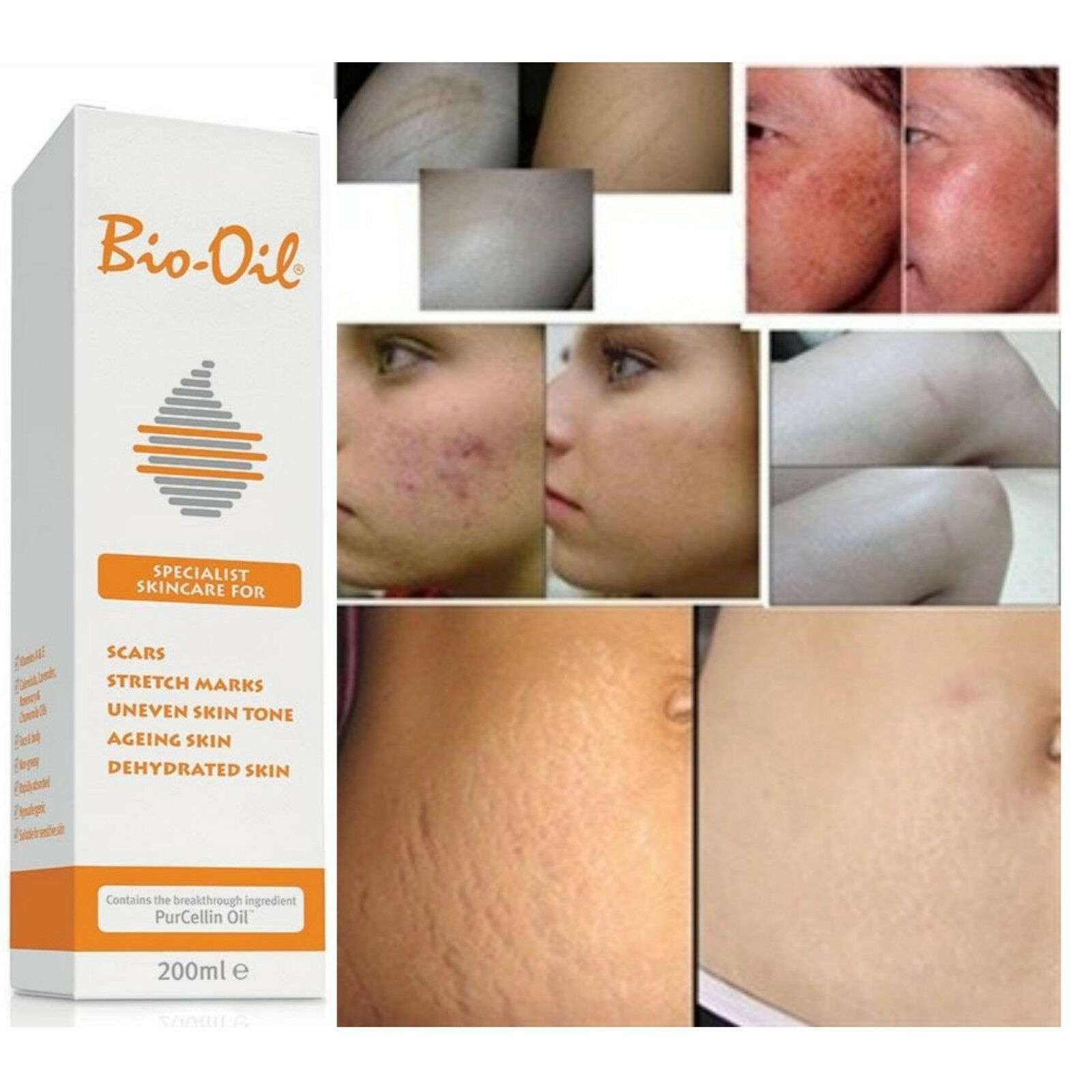 Details About Bio Oil Skin Stretch Marks Pregnancy Scars ...