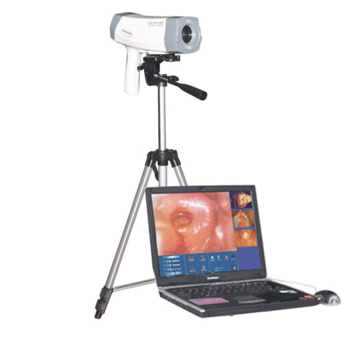 Digital Video Electronic Colposcope 480000 Camera+Tripod For vagina Lab Medical