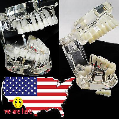 Usa Sale Dental Pathologies Implant Disease Teeth Model Restoration Bridge Tooth
