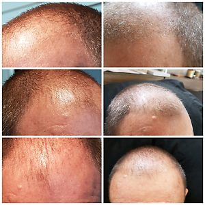 Be a Scalp Micropigmentation Model Southport Gold Coast City Preview