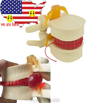 Us Sale Medical Lumbar Spine Model Disc Herniation Demonstration Teach Model