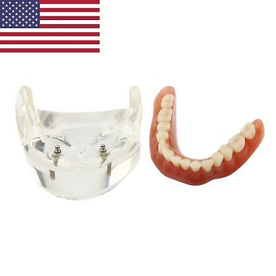 Dental Implant Restoration Model Overdenture Lower Jaw 2 Implants 6002