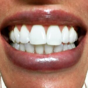 Dental Cleaning And Whitening SPECIAL!