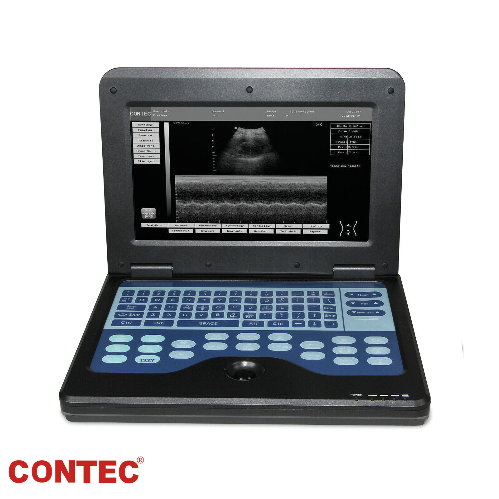 NEW NEW PORTABLE LAPTOP MACHINE DIGITAL ULTRASOUND SCANNER, OPTIONAL 4 PROBES,CE FDA