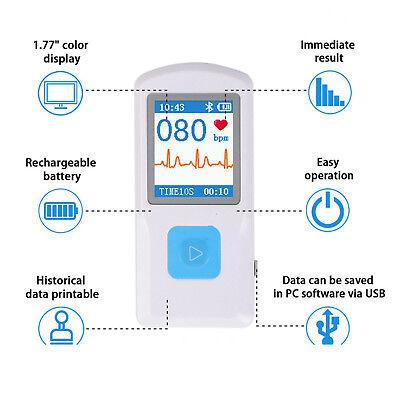 Pm10 Portable Ecg Ekg Machine Color Screen Ecg Monitor Heart Beat Monitor
