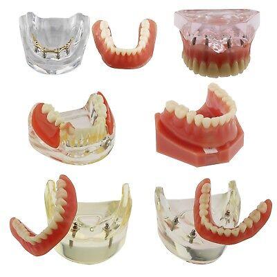 Dental Implants Restoration Model Overdenture Inferior Golden Study Demo Jaw