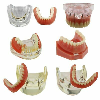 6 Type Dental Implants Restoration Overdenture Inferior Golden Study Demo Model