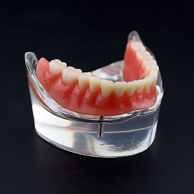Dental Teeth Study Model Overdenture Inferior With 2 Implants Lower Demo Jaw