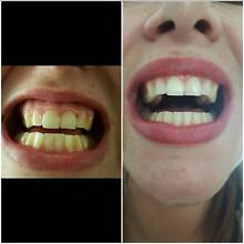 TEETH WHITENING Lara Outer Geelong Preview