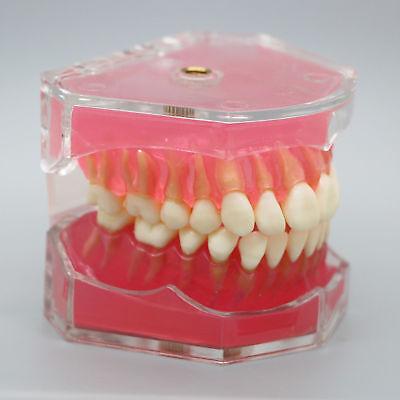 Dental Orthodontic Standard Plastic Teeth Model 4004 With 28 Removeable Teeth