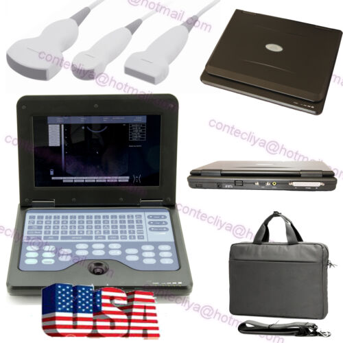 Us Portable Laptop Digital Ultrasound Scanner Machine 3 Probes Diagnostic System
