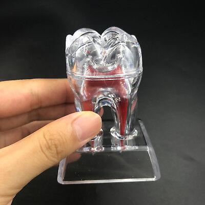 Dentist Dental Crystal Base Hard Plastic Teeth Tooth Molar Model Separable