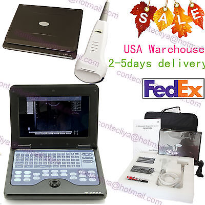Ce Portable Laptop Machine Full Digital Ultrasound Scanner Cms600p2convex Probe