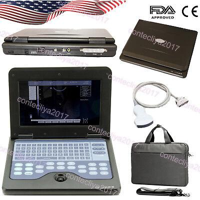 2018 Newest Digital Laptop Ultrasound Scanner 3.5mhz Convex Machine 10.1 Lcd