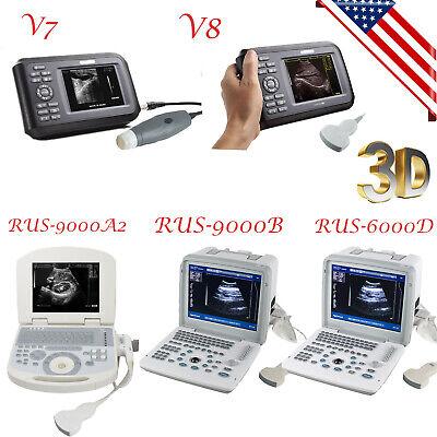 Usps 3d Portable Digital Ultrasound Scanner Machine 3.5mhz Convex Probe Spo2
