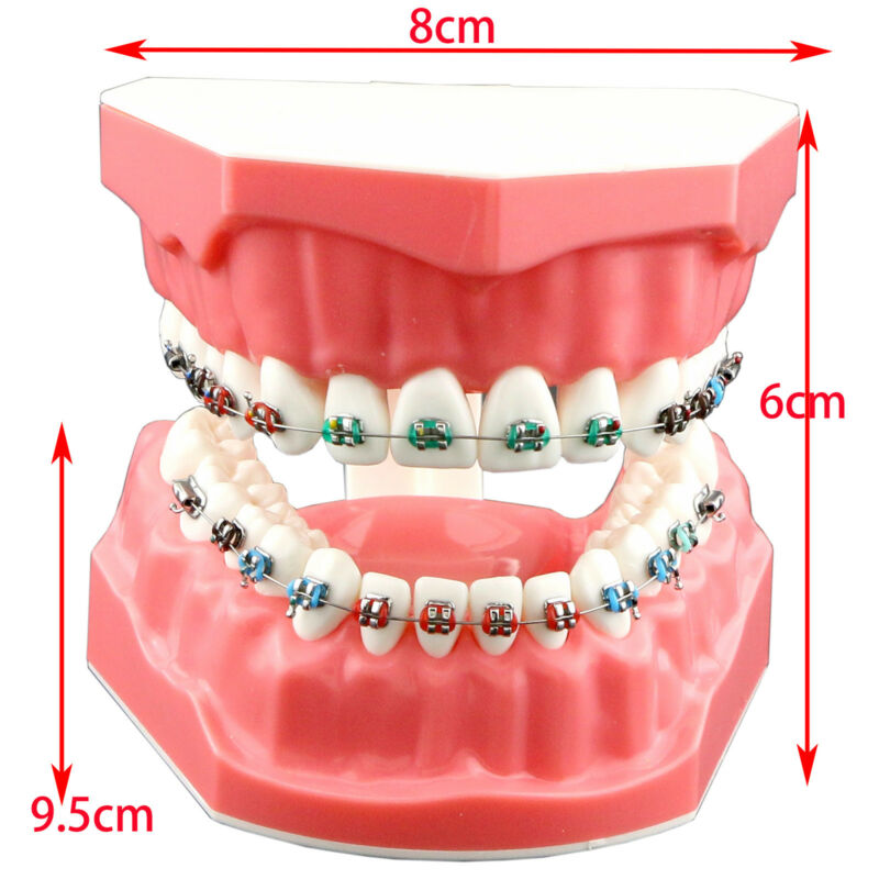 Dental Orthodontic Teeth Model Teach Typodont Demonstration Metal Bracket Tubes