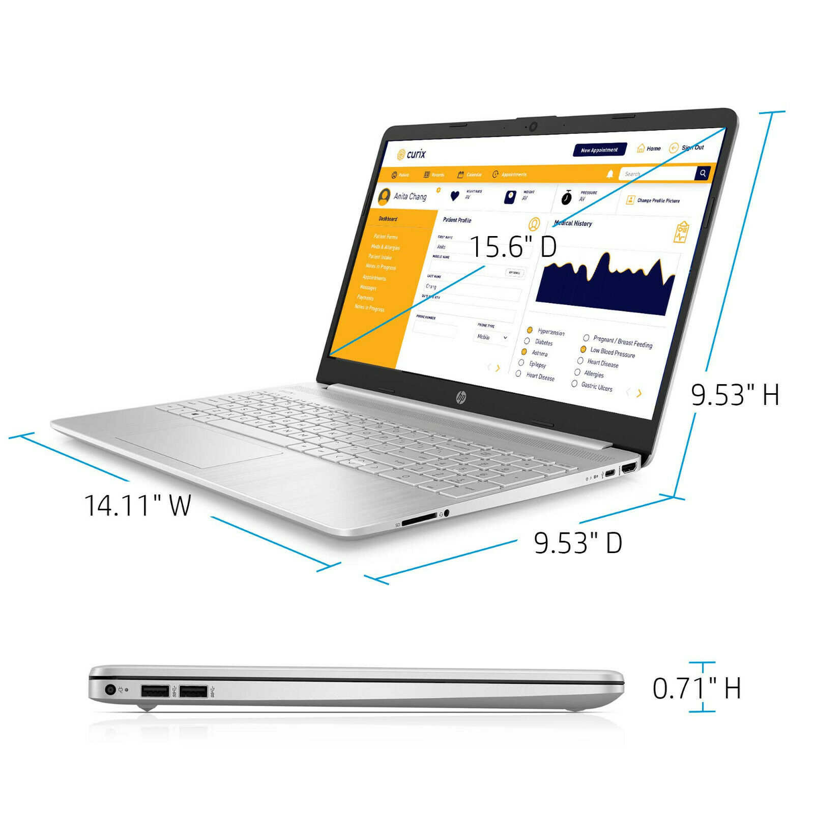 "SoltekOnline: NEW HP 15.6"" HD Intel 10th Gen i3-1005G1 3.4GHz 4GB"