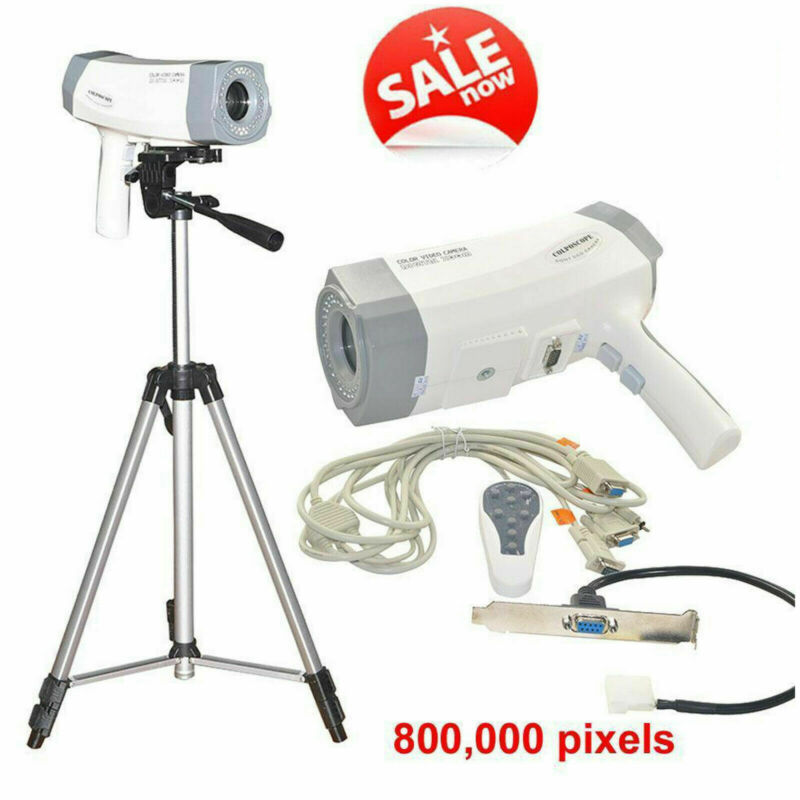 Medical Digital Zoom SONY CCD Color Video Camera Electronic Colposcope + Tripod