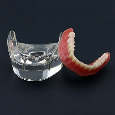 Dental Typodont Teeth Model 6002 01 - Overdenture Inferior With 2 Implants