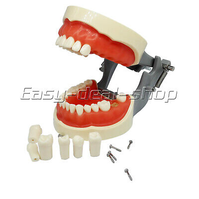 New Kilgore Nissin 200 Type Dental Typodont Model With Removable Teeth Easy