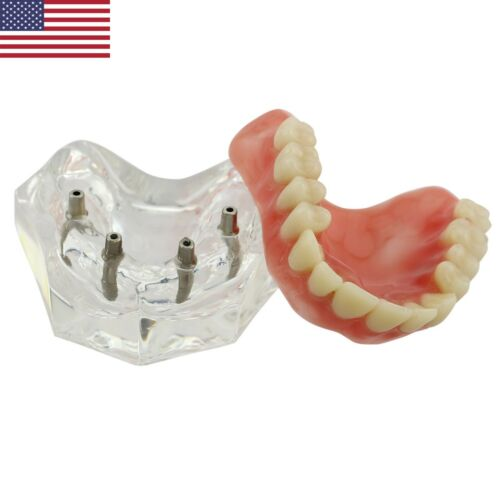 Dental Implant Restoration Locator Overdenture Model Upper Jaw 4 Implants M6001