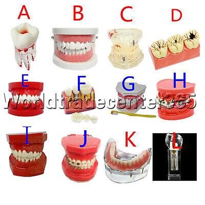 New Dental Implant Teeth Model Teach Study Teaching Adult Analysis Demonstration