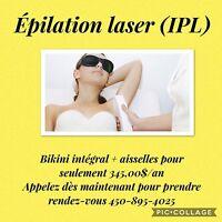 Épilation laser (IPL)