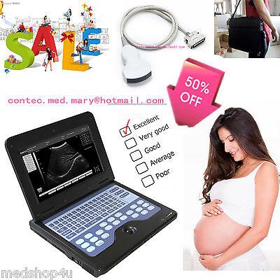B-ultrasound Machinesmart Laptop Ultrasound Scaner3.5mhz Convex Probecms600p2