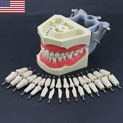 Us Dental Typodont Teaching Exam Model Removable 32pcs Teeth Columbia 860 Type