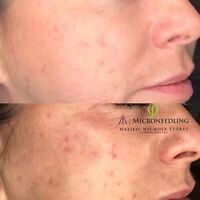 50% off Philings Microneedling Treatment