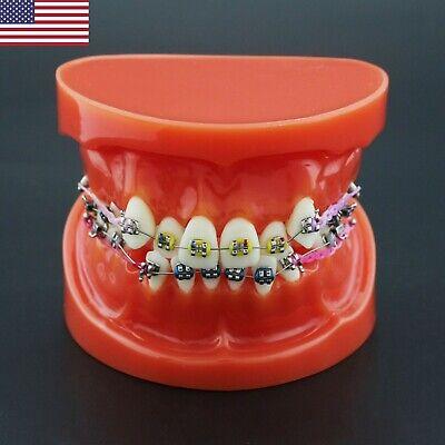 Dental Orthodontic Teeth Model Typodont Brackets Arch Wire Ligature Tie M3005