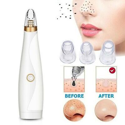 Limpiador poros eléctrico Removedor espinillas vacío Limpiador succión faciales