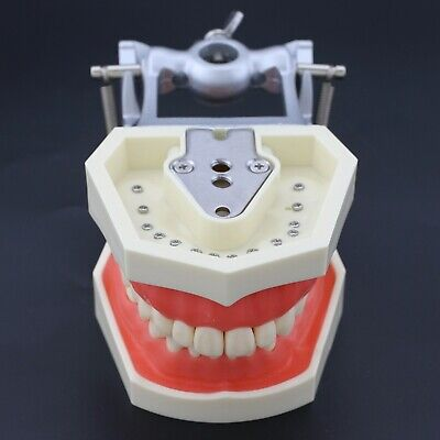 Kilgore Nissin 200 Type Dental Practice Typodont Teeth Model M8011