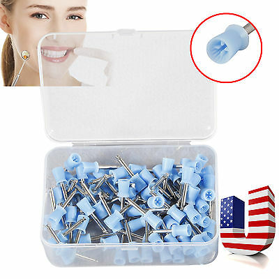 Usa Dental Polishing Polish Cups Prophy Cup Latch Type Blue 100pcs