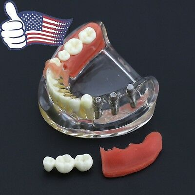 Dental Upper Jaw Implant Typodont Restoration Teeth Model Removable Bridge 6006
