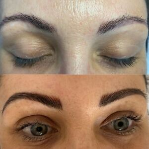 injectables in Palm Beach 4221, QLD | Health, Fitness & Beauty