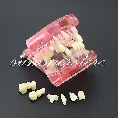 Dental Implant Restorationbridge Disease Teeth Study Model Removable Pink